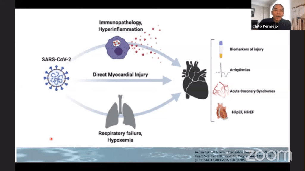"""Screenshot of Permejo's presentation slide in """"COVID-19 and the Heart"""" showing the likely causes of cardiac injury in COVID-19 patients."""